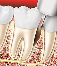 Periodontal Surgery Tissue Removal