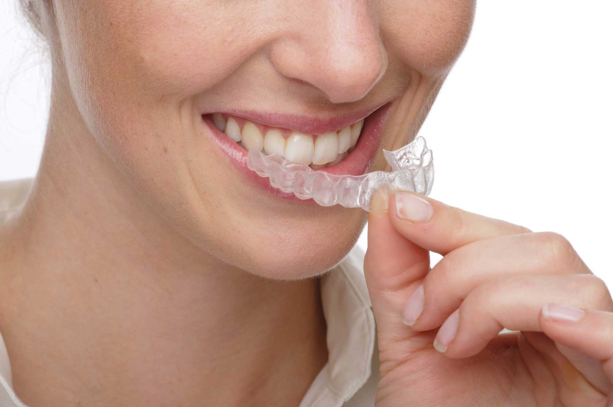 Invisalign clear tooth alignment system